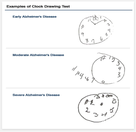 Clock drawing test for Alzheimer's diagnosis